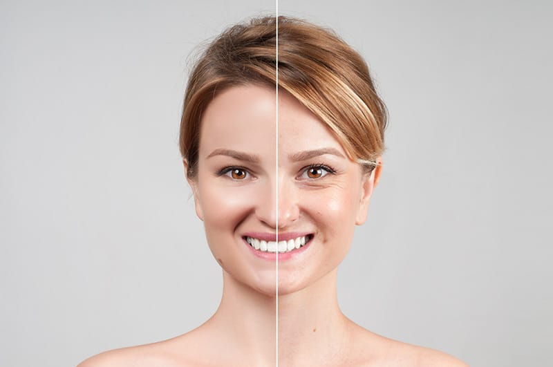 A model before and after using Telosin